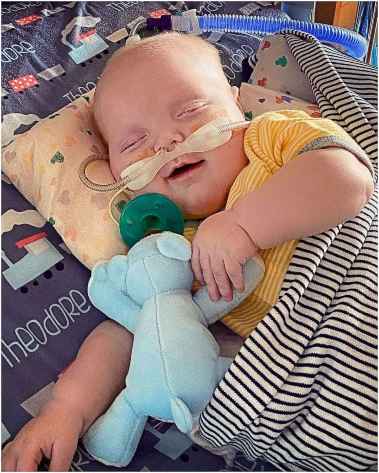 """PHOTO: Theodore """"Teddy"""" Nelson has spent 185 days in the hospital. On Nov. 13, the 6-month-old had his second open heart surgery and on Feb. 6, Teddy finally smirked for his mom and dad."""