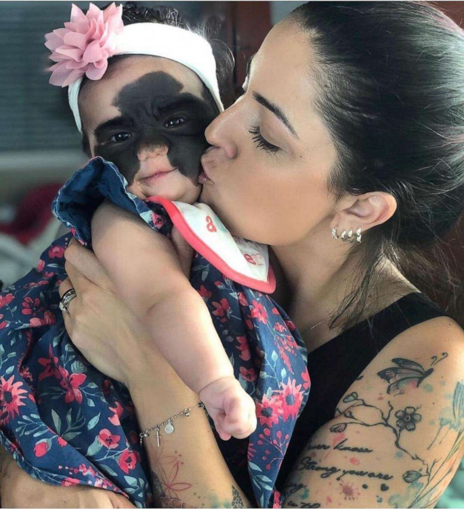 PHOTO: Luna Fenner was born with a congenital melanocytic nevus, which is a skin condition that shows a large marking on her face.