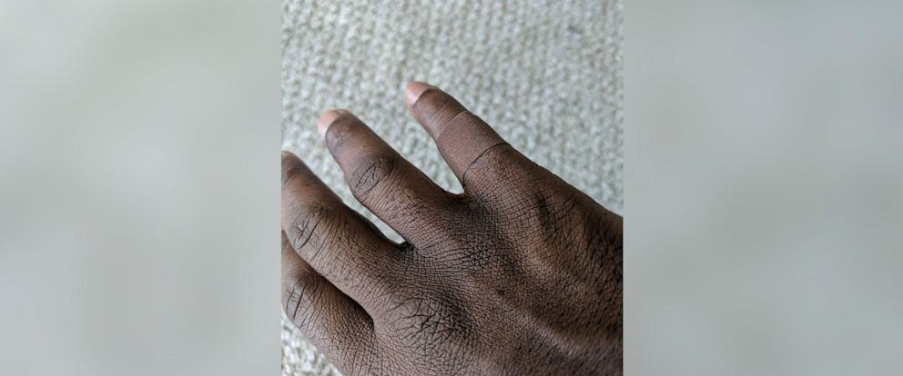 PHOTO: Dr. Dominique Apollon, 45, of San Francisco Bay, Calif., shared two photos of a bandage that matched his skin tone which received over half a million likes on Twitter.