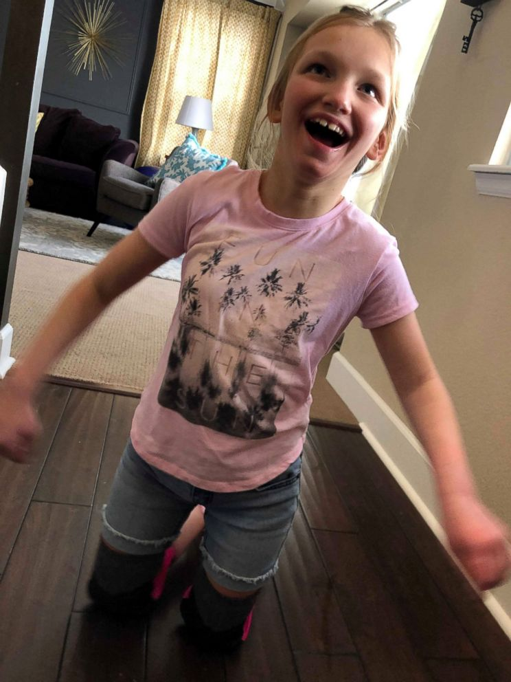 PHOTO: Birkley, 11, has cerebral palsy and spent most of her life walking on her knees but recently took her first steps in a now-viral video.