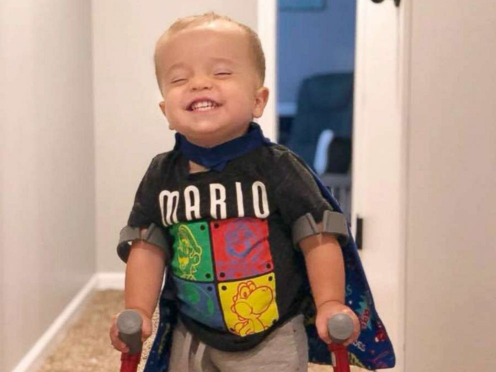 PHOTO: Roman Dinkel, 2, has gained millions of followers from around the world after a video of him walking went viral.
