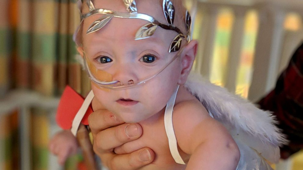 Eight-month-old Connor Florio of Danbury, Connecticut, a former 26-week micro preemie born less than 11 ounces in New York.