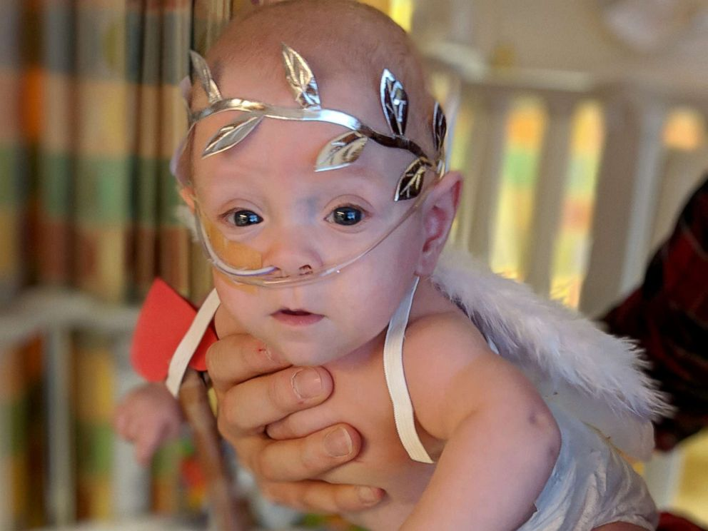 PHOTO: Eight-month-old Connor Florio of Danbury, Connecticut, a former 26-week micro preemie born less than 11 ounces in New York.