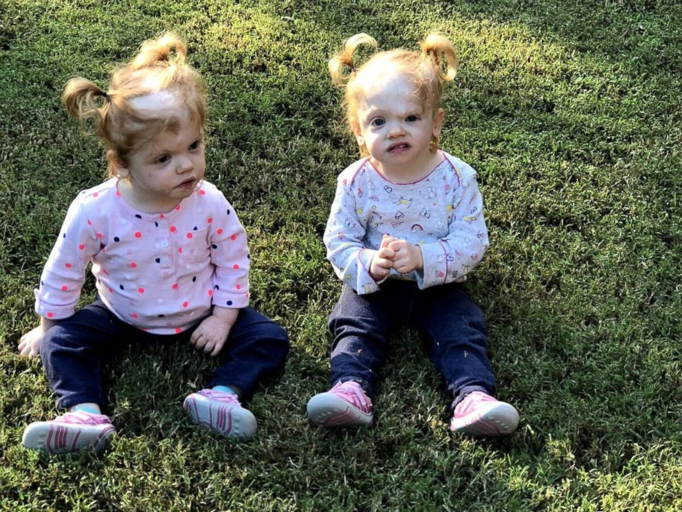 PHOTO: Erin and Abby Delaney are thriving two-year-olds, living with their parents Heather and Riley in Mooresville, N.C.