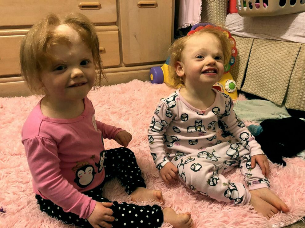PHOTO: Twins Erin and Abby Delaney, now 2 years old, were born attached at the head but underwent one of the wrolds rarest separation surgeries.