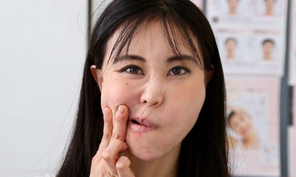 PHOTO: Face Yoga instructor, Koko Hayashi, demonstrates facial exercises.
