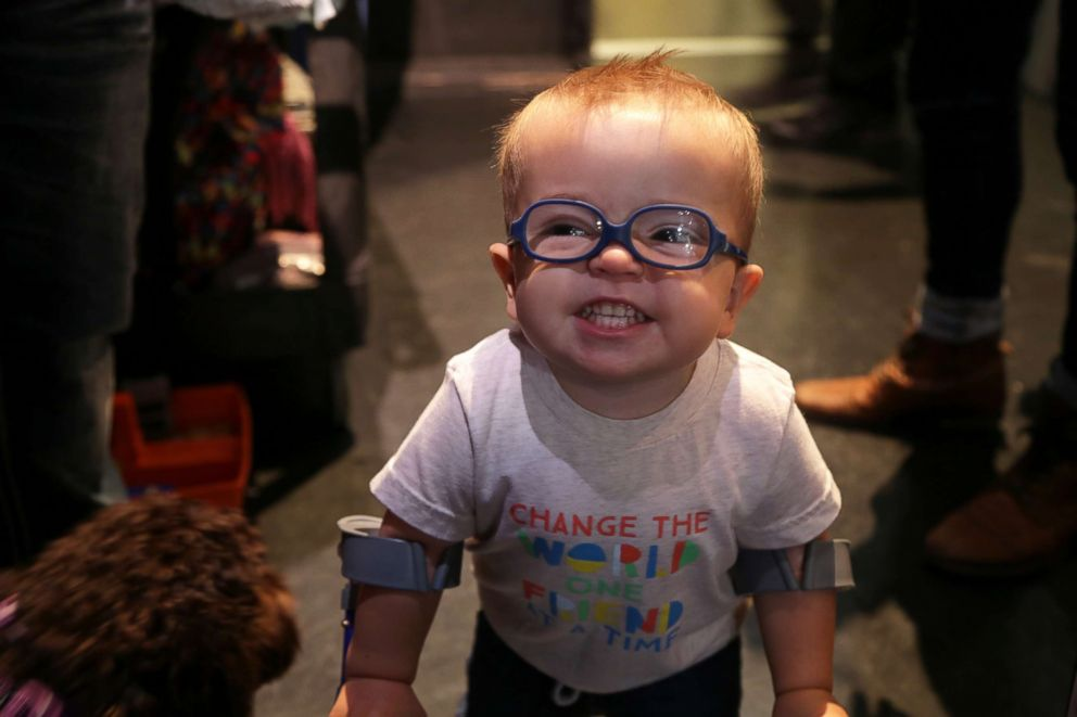 PHOTO: Roman Dinkel, 2, who has spina bifida, has persevered and started using a walker at 1 year old.