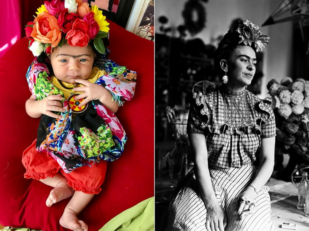 PHOTO: Liberty Wexler, 3 months, is seen here dressed as Mexican artist, Frida Kahlo.