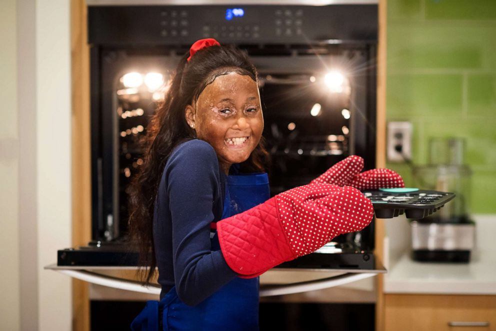 PHOTO: Ariana was born with sickle cell disease and wants to be a chef when she grows up.