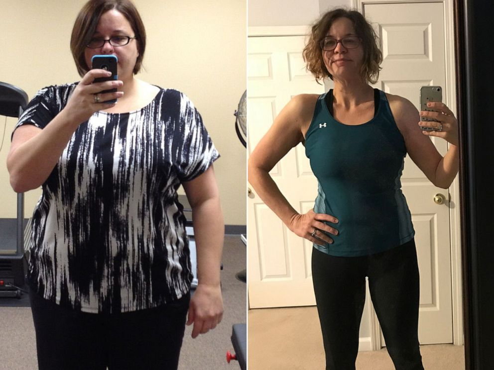 PHOTO: Laura Rosenthal, of Tennessee, is pictured before and after her weight loss.