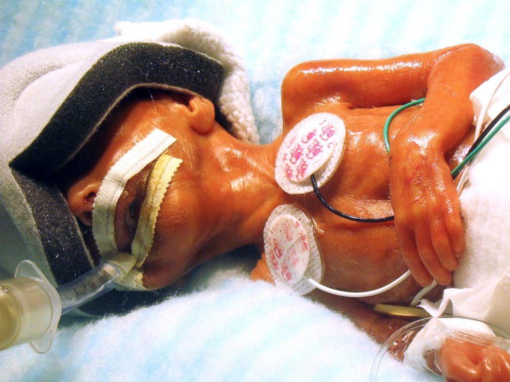 Isabella Ciriello was born almost 16 weeks early.