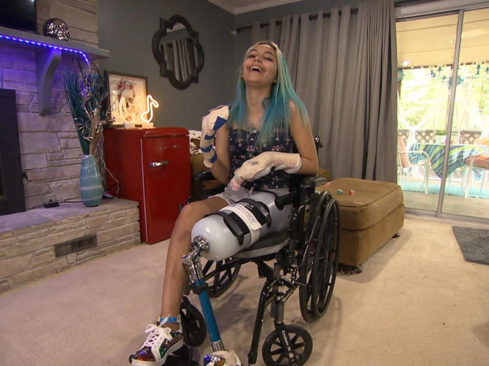 PHOTO: Paige Winter, 17, lost two fingers and her left leg was amputated.
