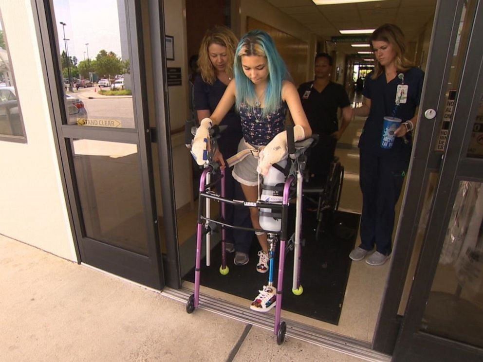 PHOTO: Paige Winter, 17, leaves Vidant Medical Center in Greenville, N.C., in July 2019.