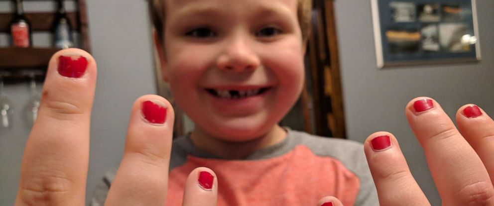 PHOTO: 5-year-old Sam Gouveia was bullied for wearing nail polish to school.