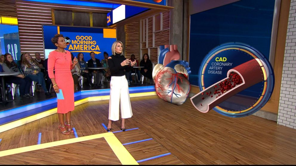 PHOTO: ABC News chief medical correspondent Dr. Jennifer Ashton uses a 3-D augmented reality human model to demonstrate what a traditional heart attack caused by coronary artery disease looks like.