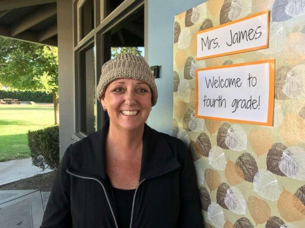 PHOTO: Katherine James, of Santa Barbara, California, completed chemotherapy on Sept. 11, 2018.