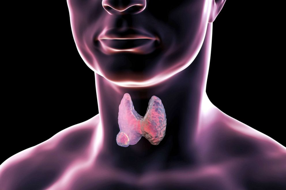 PHOTO: A stock illustration of a Thyroid gland tumor.
