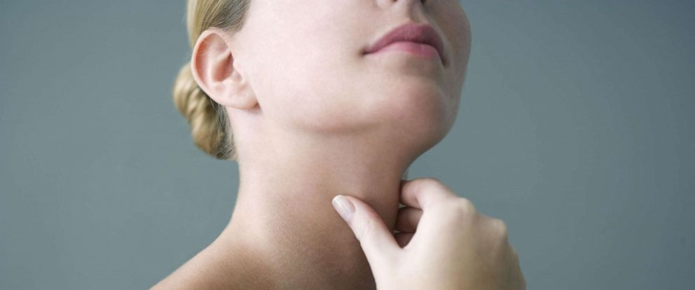 PHOTO: A person appears to hold their thyroid in this stock photo.