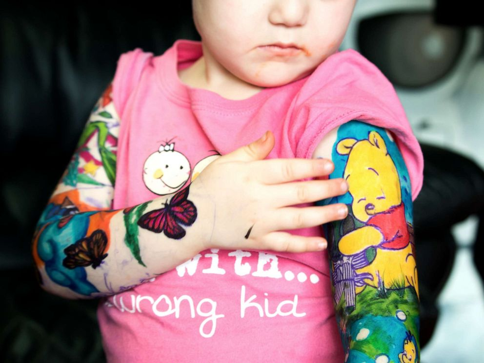PHOTO: Trinity DAutorio, 3, was diagnosed with neuroblastoma in July 2018. She also has Horners syndrome and Harliquine syndrome.