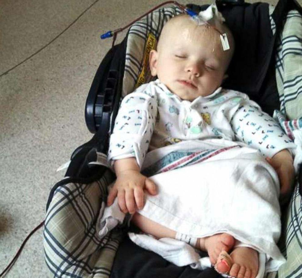 PHOTO: Gabriel Smith, now 7, sleeps through a platelet transfusion as an infant.