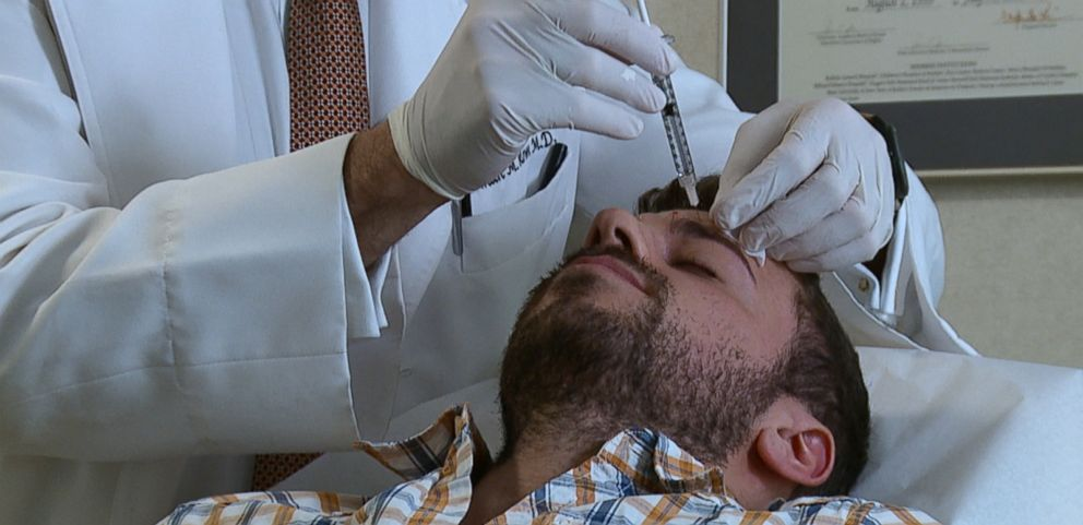VIDEO: Doctors say that unlike women, men want their Botox to leave some lines behind.