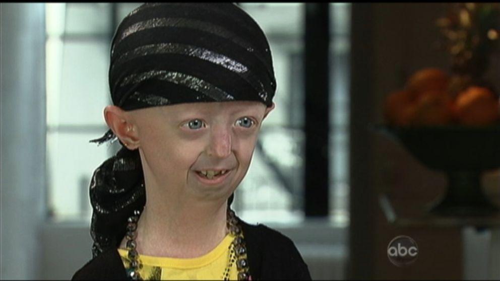 hayley okines battles aging disease progeria video abc news