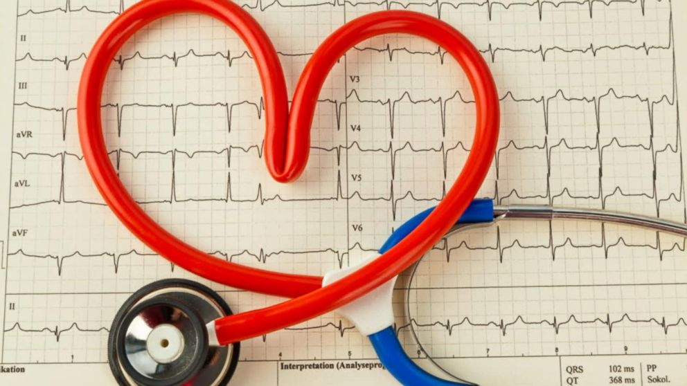 VIDEO: Heart Attack Warning Signs