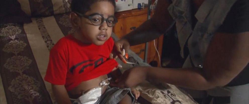 VIDEO: Georgia toddlers kidney transplant in limbo