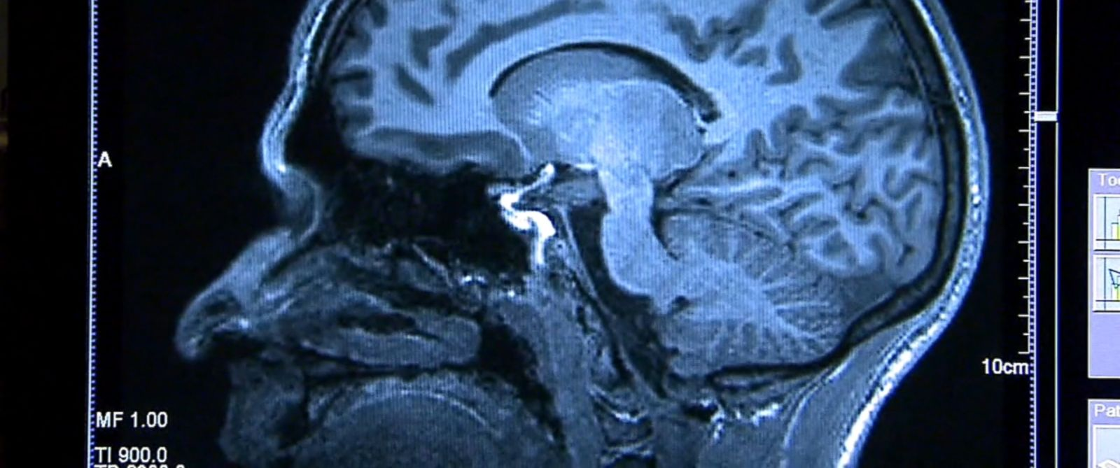 The researchers looked at veterans with a history of traumatic brain injury.