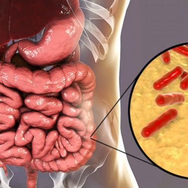 Do probiotics really make a difference in keeping our guts