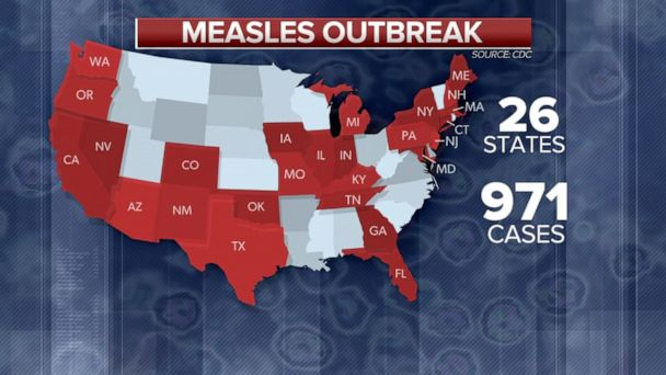 Number of measles cases in 2019 surpass 25-year record