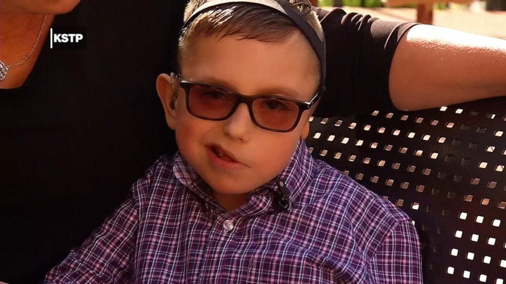 Boy with 1 ear gets life-changing glasses