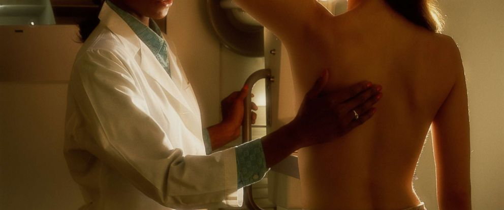 PHOTO: A woman is screened for breast cancer in this stock photo.