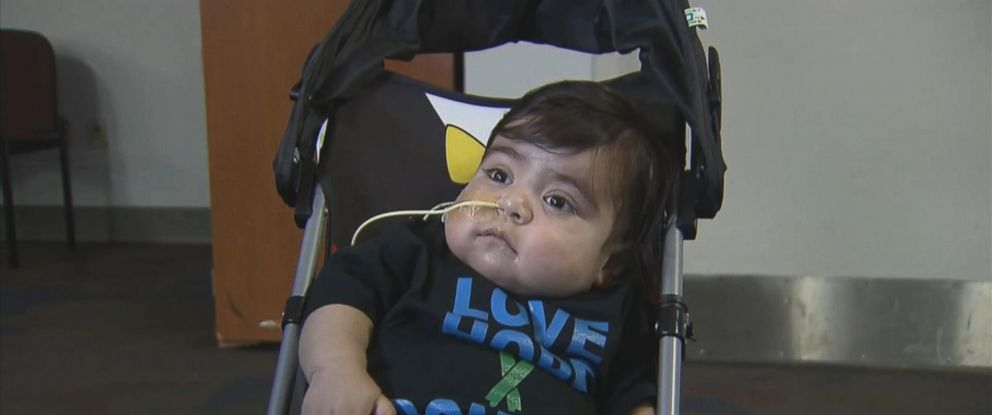 PHOTO: A Texas toddler got a live saving operation where he received eight donated organs.