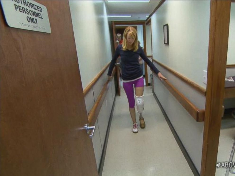 PHOTO: Adrianne Haslet-Davis practices physical therapy exercises with her prosthetic leg.