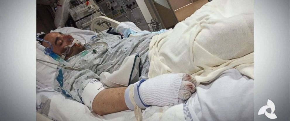 PHOTO: Justin Smith, 26, survived despite spending hours in freezing temperatures and being found with no pulse.