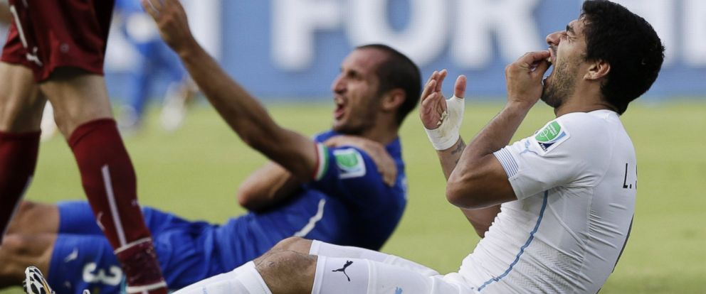 PHOTO: Uruguays Luis Suarez holds his teeth after running into Italys Giorgio Chiellinis shoulder