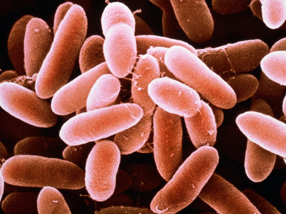 PHOTO: Listeria monocytogenes bacteria