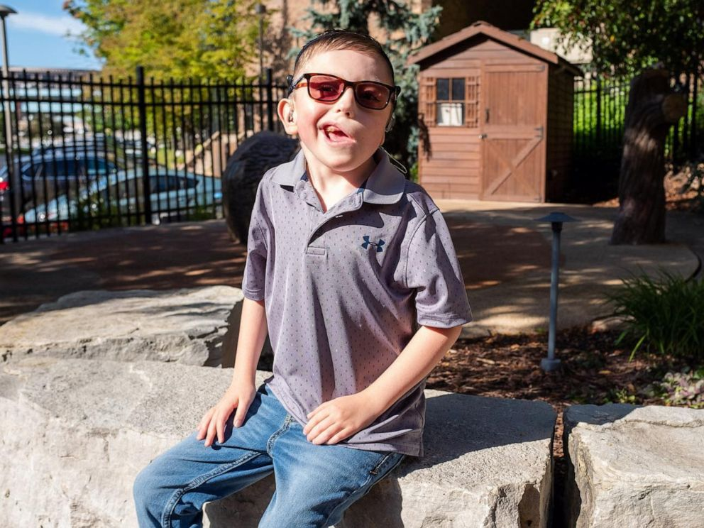 PHOTO: Gillette Childrens Specialty Healthcare made a custom glasses system for a young Minnesota boy who was born with microtia.