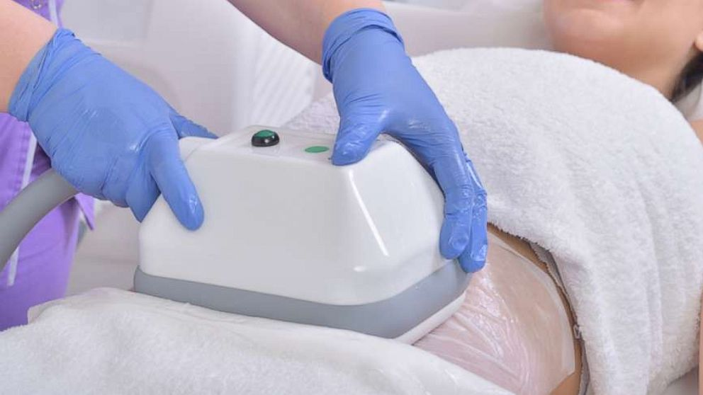 Freezing fat cells: Noninvasive fat reduction procedures