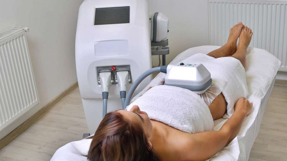 A woman undergoes cryolipolysis in this undated stock photo.