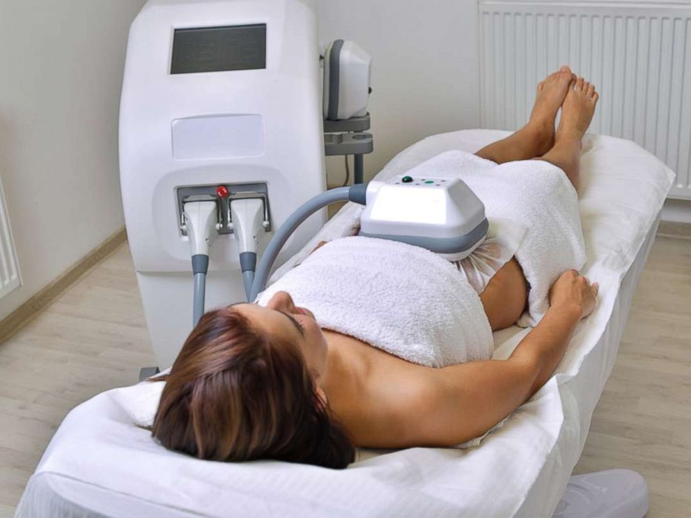 PHOTO: A woman undergoes cryolipolysis in this undated stock photo.