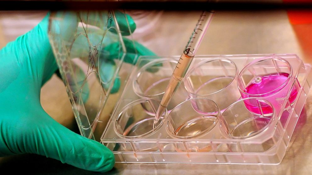 stem cell researchers anxious about trump presidency abc news