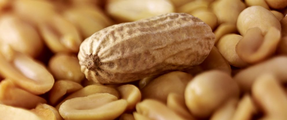 PHOTO: Many people suffer from a peanut allergy.