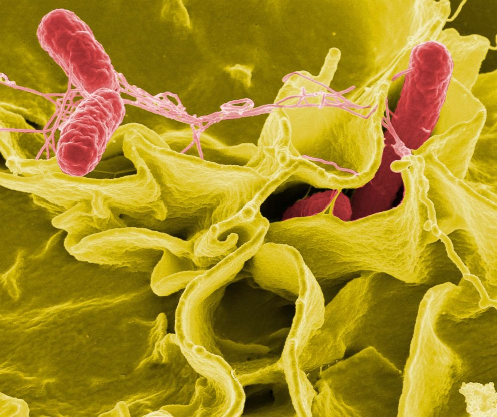 PHOTO: Color-enhanced scanning electron micrograph showing Salmonella typhimurium, red, invading cultured human cells.