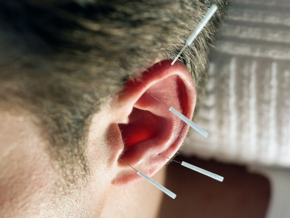 PHOTO: The military uses auricular acupuncture to treat pain on and off the battlefield.