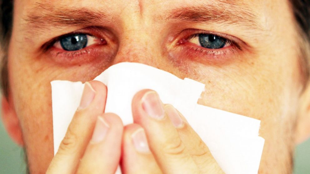 5 Secrets to Outsmart Your Allergies - ABC News