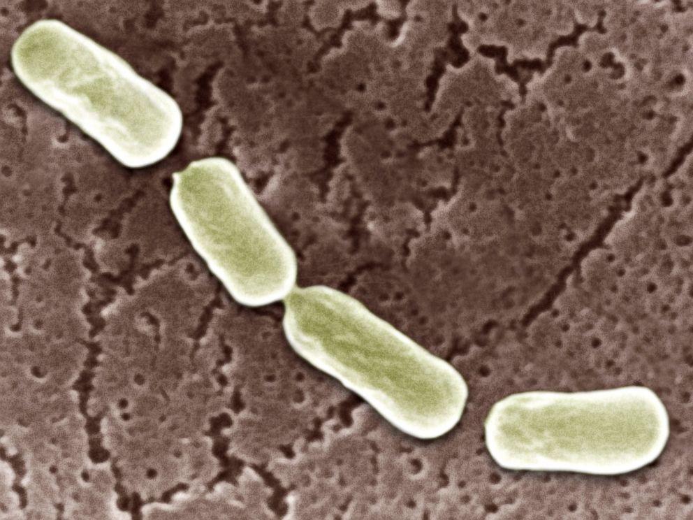 PHOTO: Clostridium Botulinum is seen through an electron microscope.