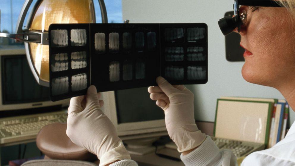 How Experts Identify Crash Victims Through Dental Records Abc News