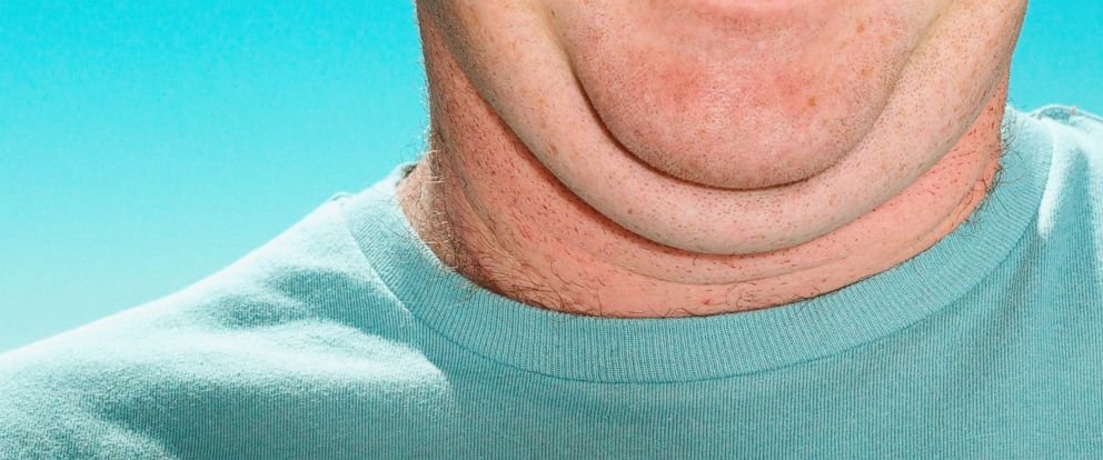 PHOTO: A double-chinned man is shown in this undated stock image.